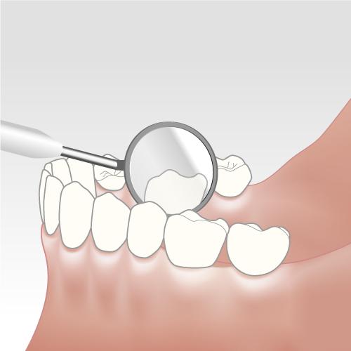 Parodontose Vorsorge