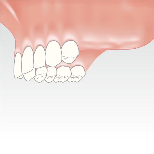 behandlung grosse zahnluecke
