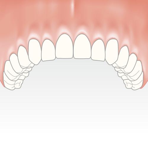 behandlung zahnloser kiefer feste dritte zaehne northeim