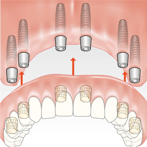 behandlung zahnloser kiefer implantate oberkiefer