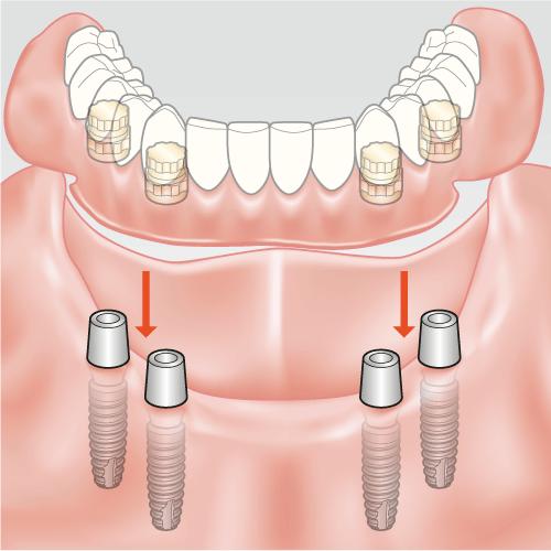 behandlung zahnloser kiefer; unterkiefer prothese