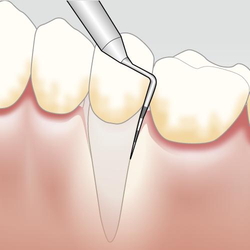 Paradontitis Zahnfleischentzündung